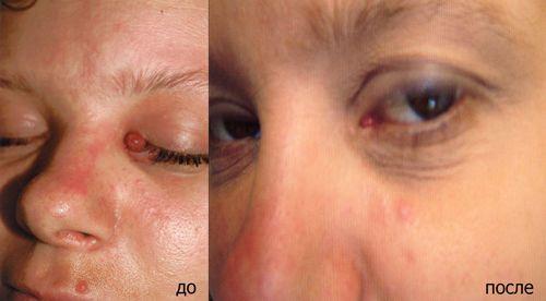 Папилломы на коже лечение