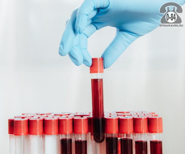 Анализ крови общий белок для взрослых без выезда