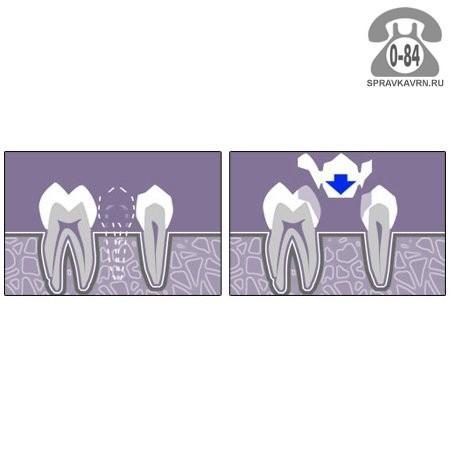 отбеливание зубов воронеж отзывы