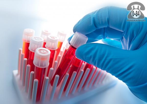 Анализ крови HBsAg (HBs антиген  вируса гепатита В) для детей без выезда