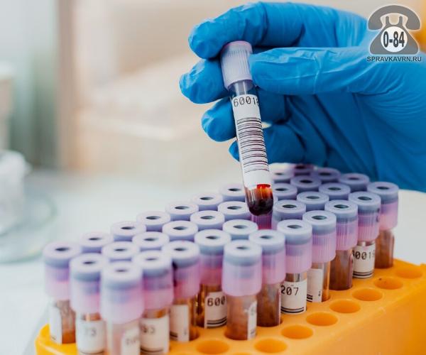 Анализ крови глюкоза для взрослых без выезда