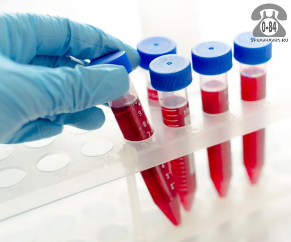Анализ крови коагулограмма для взрослых без выезда