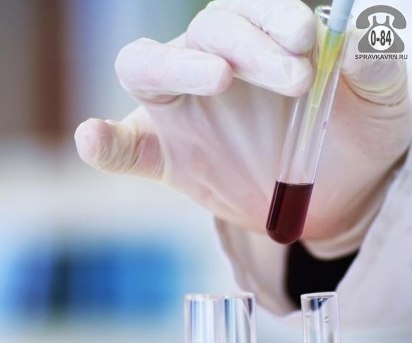 Анализ крови ЛПНП (липопротеины низкой плотности) для взрослых без выезда