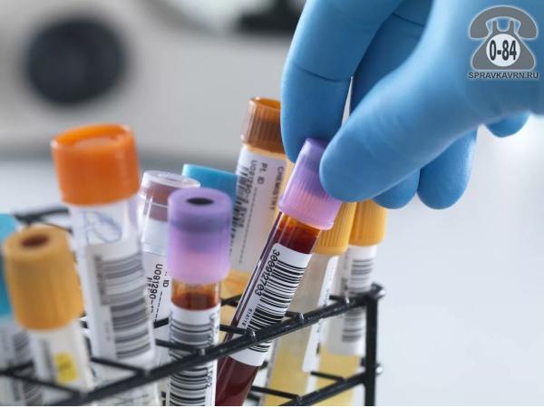 Анализ крови антитела к ТПО (тиреоидной пероксидазе) для взрослых без выезда