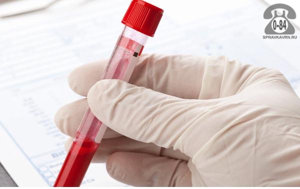 Анализ крови IgE (иммуноглобулин Е общий) для взрослых без выезда