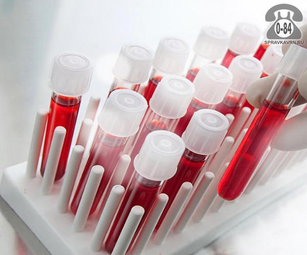 Анализ крови липидный спектр ( ЛПНП + индекс атерогенности) для взрослых без выезда