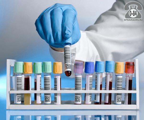 Анализ инфекций, передающихся половым путем СПИД (Синдром приобретённого иммунного дефицита)