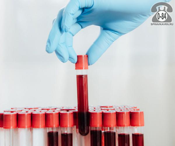 Анализ крови общеклинический (общий) + тромбоциты на гематологическом анализаторе для взрослых без выезда