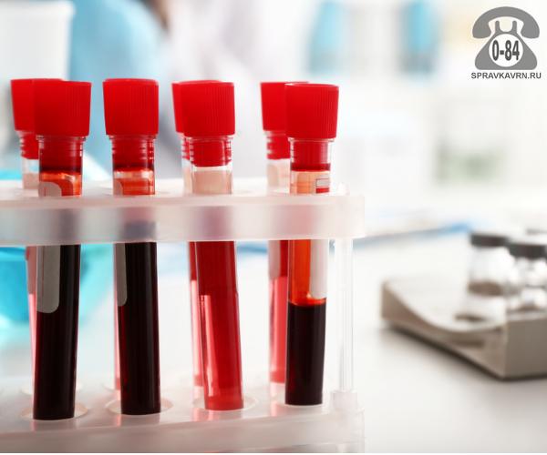 Анализ крови общеклинический (общий) для взрослых выезд к пациенту на дом