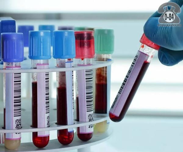 Анализ крови мочевая кислота для взрослых без выезда