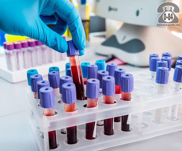 Анализ крови антистрептолизин-О (АСЛ-О) для взрослых без выезда