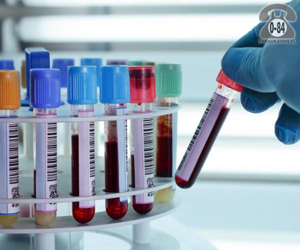 Анализ крови билирубин для взрослых без выезда