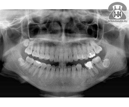 Панорамный снимок зубов воронеж цена